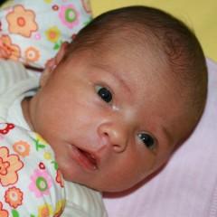 Как да се справим с физиологичната жълтеница при кърмачетата, родени в термин