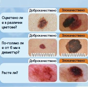 Кои бенки могат да се трансформират в меланома?