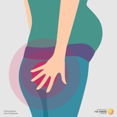 Хемороиди през бременността